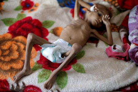 FILE PHOTO: A malnourished boy in a treatment centre in Sanaa, Yemen
