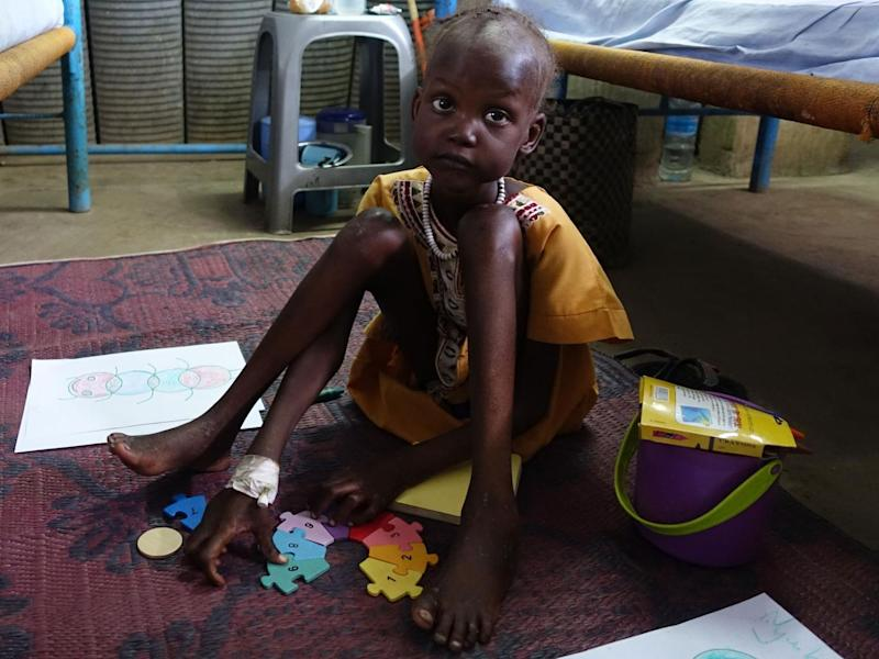 Six-year-old Dalia Mahmoun is one of more than a quarter of a million of children starving in South Sudan (Unicef)