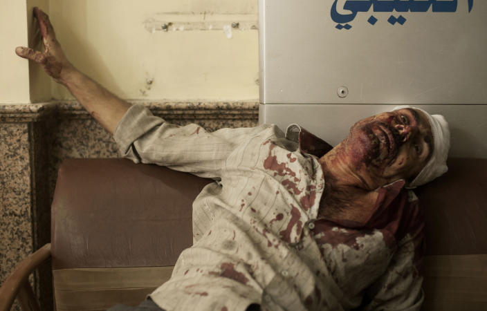 In this Thursday, Sept. 20, 2012 photo, a wounded man waits to be treated in the waiting room of Dar El Shifa hospital in Aleppo, Syria. Dozens of Syrian civilians were killed on Thursday, four children among them, in artillery shelling by government forces in the northern Syrian town of Aleppo. (AP Photo/ Manu Brabo)