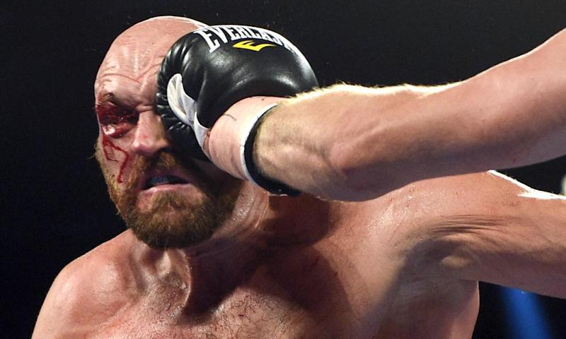 Tyson Fury takes a hit during his heavyweight bout against Otto Wallin in September.