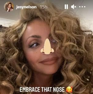 Jesy Nelson has complained Instagram filters shrink her nose. (Instagram/Jesy Nelson)