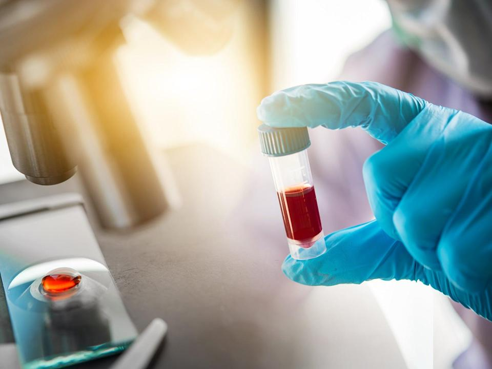 The Royal College of Pathologists says boosting post mortems could help treat future Covid-19 patients (Getty/iStock)