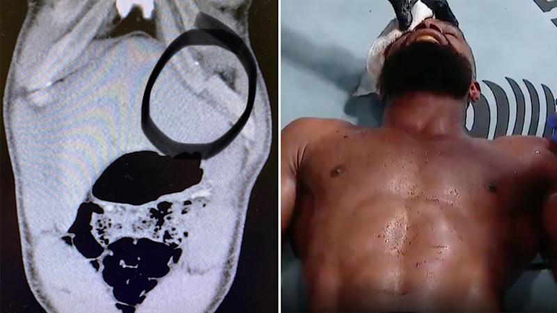 Seen here, Tyron Woodley lies in pain after suffering a broken rib in his fight against Colby Covington.