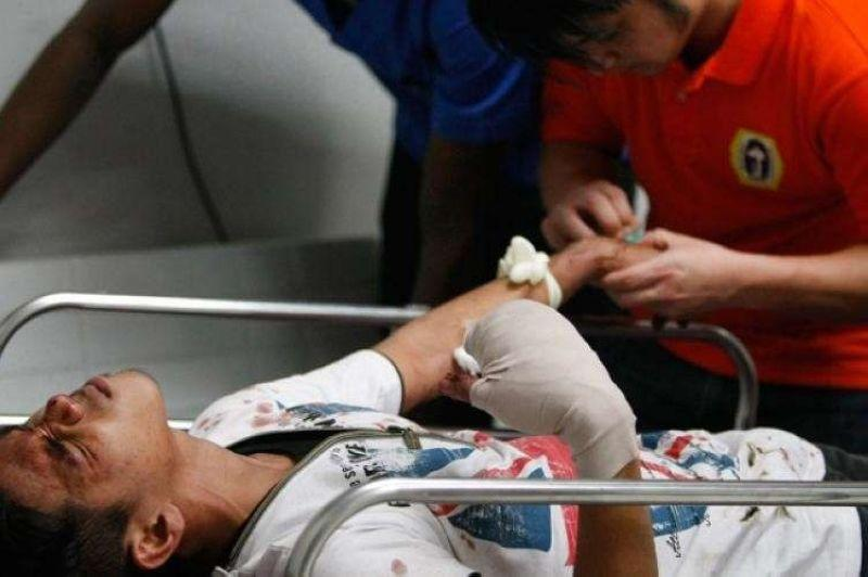 Firecracker injuries surge on New Year's Day