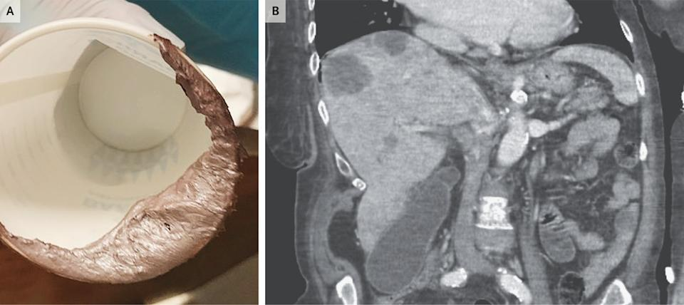 Silver stool is seen in a paper cup along with an X-ray of a woman's stomach.