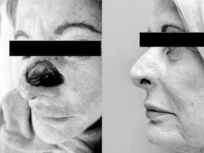 New Techniques For Treating Advanced Skin Cancer After Mohs Chemosurgery