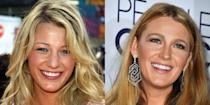 """<p>""""Less is sometimes more. When it comes to Blake, who has a naturally wide smile, it appears she had some minor gum reshaping and bleaching. Gum reshaping can be done with a laser and sometimes with just topical anesthesia. Healing time can be as little as one day.""""</p><p><em>Shop similar: Crest 3-D </em><em>White Whitestrips with Light Teeth Whitening Kit, $100</em></p><p><a class=""""link rapid-noclick-resp"""" href=""""https://go.redirectingat.com?id=74968X1596630&url=http%3A%2F%2Fwww.ulta.com%2F3d-white-whitestrips-with-light-teeth-whitening-kit%3FproductId%3DxlsImpprod16001043&sref=https%3A%2F%2Fwww.menshealth.com%2Fentertainment%2Fg33929877%2Fcelebrity-smiles-before-and-afters%2F"""" rel=""""nofollow noopener"""" target=""""_blank"""" data-ylk=""""slk:BUY IT"""">BUY IT</a><br></p>"""