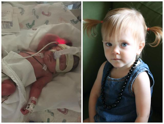 Evelyn was born at 31 weeks. She stayed in the NICU for 54 days. Come December, she will be turning 2 years old and is a fun, rambunctious, loving little girl.<br><br><i>--Stephanie May</i>