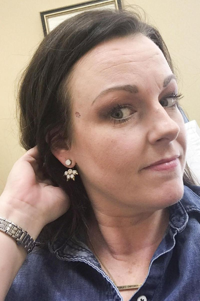 A mum-of-two has been left with a hole in her face after dismissing skin cancer as a 'stubborn spot.' Photo: Caters