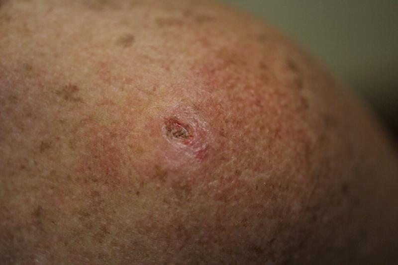 Skin cancer is the most common form of cancer