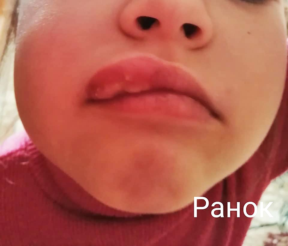 A young girl is seen with swollen lip. Source: Australscope