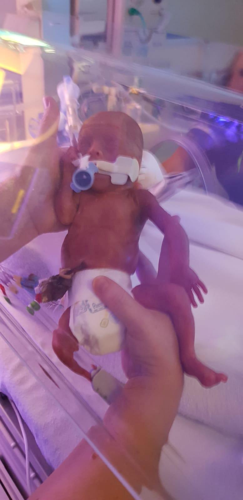 Haris was in the NICU when he was born [Photo: SWNS]