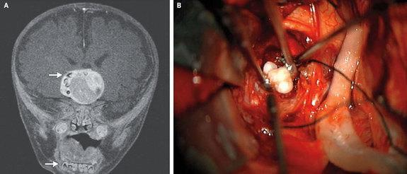 A brain tumor in an infant was found to contain teeth. One the left, a brain scan of the boy's tumor. On the right, an image of the teeth that were removed during brain surgery.