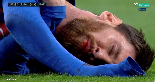 The Argentine carried on and scored in the first half but was previously bleeding from his mouth after an incident the referee ruled was incidental.