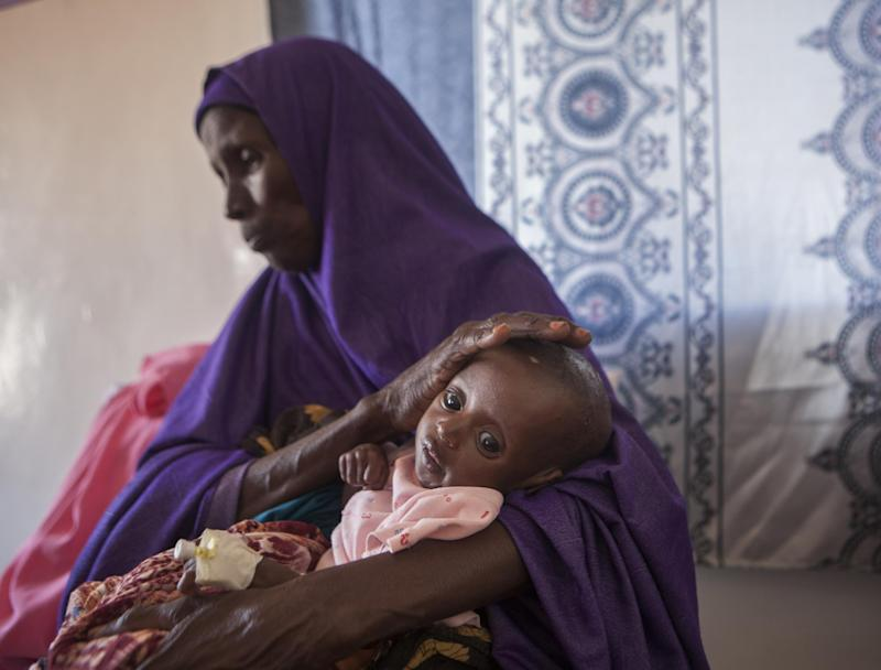 Twelve million people in Somalia are said to be affected by the worsening famine — with 50,000 children facing death, according to Save the Chidlren: pictures by: Tom Pilston/Save the Children