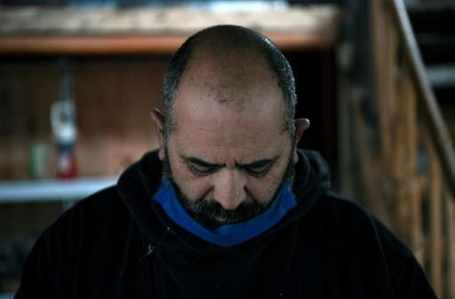 Chilean miner Mario Sepulveda has fared better than most since the ordeal, but says he feels they did not get enough treatment