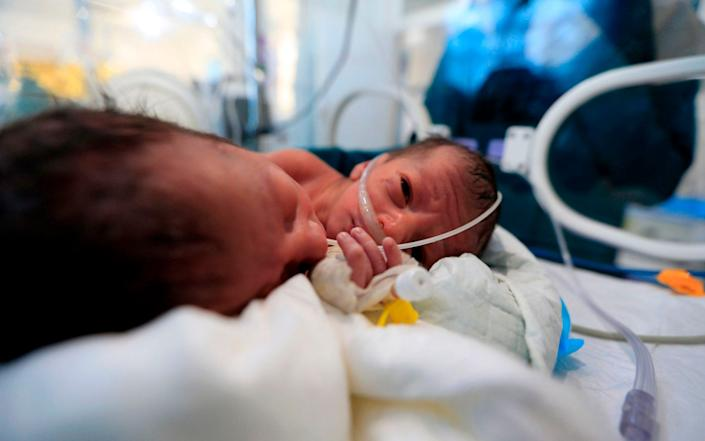 Newborn conjoined twins lie in an incubator at the child intensive care unit of al-Sabeen hospital in Yemen's capital Sanaa - MOHAMMED HUWAIS/AFP