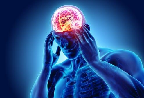 """<span class=""""caption"""">Attacks can last from 15 minutes to a couple of hours, several times a day.</span> <span class=""""attribution""""><a class=""""link rapid-noclick-resp"""" href=""""https://www.shutterstock.com/image-illustration/3d-illustration-headache-human-xray-medical-1007012911"""" rel=""""nofollow noopener"""" target=""""_blank"""" data-ylk=""""slk:MDGRPHCS/ Shutterstock"""">MDGRPHCS/ Shutterstock</a></span>"""