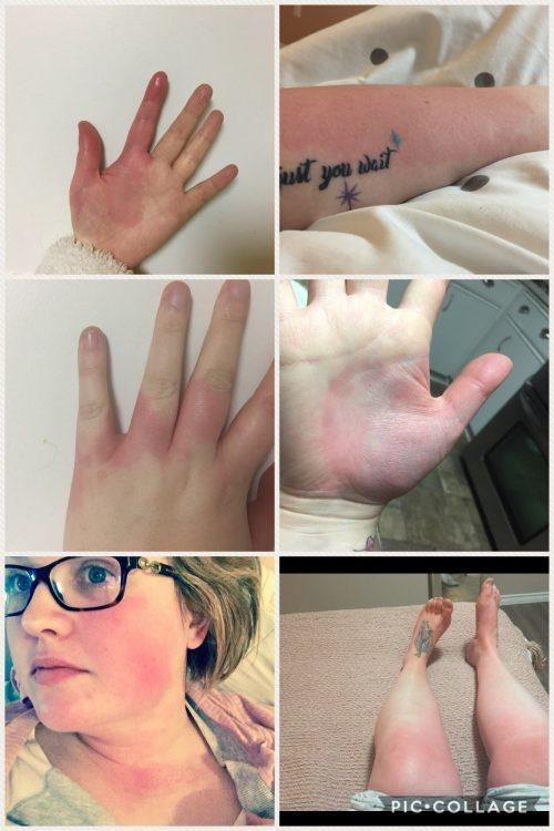 hands, legs and face with red rashes