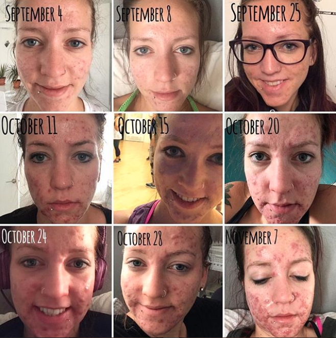 Here is a timeline of her acne struggles. Photo: Instagram/stephmkt1d