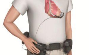 An LVAD device  - Credit: British Heart Foundation
