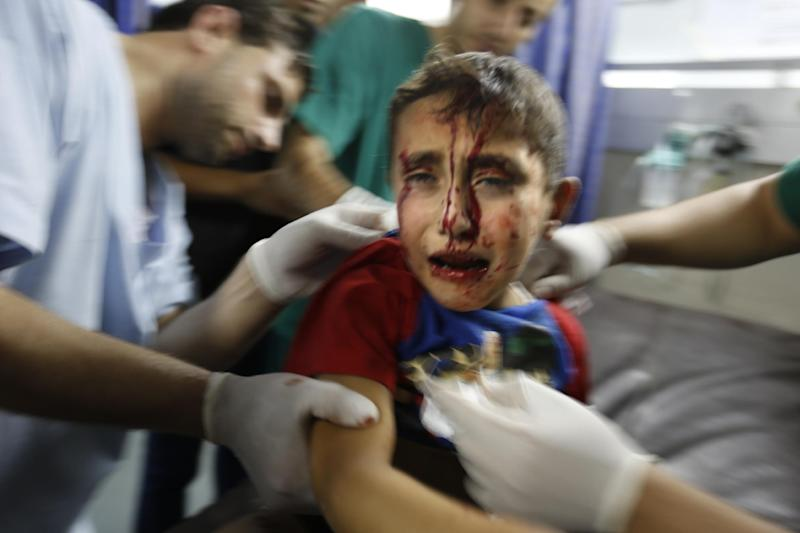 A wounded boy receives treatment at al-Shifa hospital, in Gaza City, on July 18, 2014 (AFP Photo/Mohammed Abed)