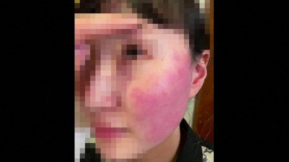 Blurred image of shop worker with swollen red face