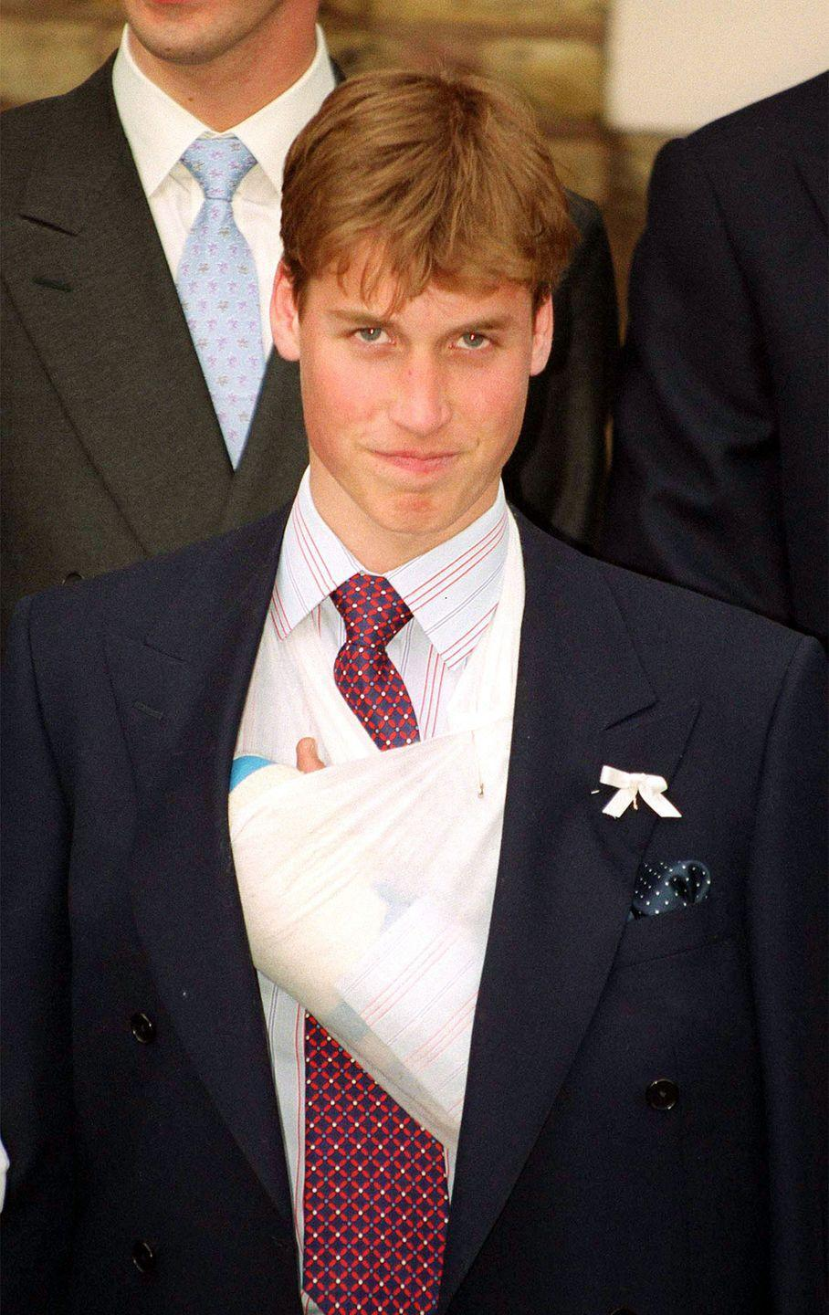 <p>Throwback to when Prince William broke his finger and got the most extra cast of all time. I feel you, man. </p>