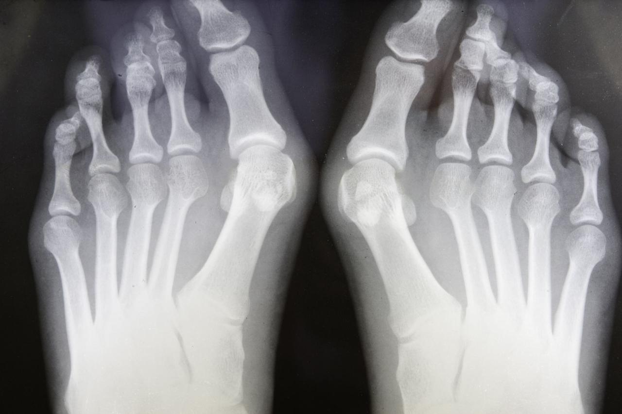 """<p>That bony bump on your big toe joint ain't pretty – and it could be causing bigger problems, too. Over time, as your big toe pushes against the rest of your toes (<a href=""""https://orthoinfo.aaos.org/en/diseases--conditions/bunions/"""" target=""""_blank"""">causing the bunion</a>), you're overloading and squeezing your adjacent toes (especially number two), Vulcano says. </p><p>The result? Nerve compression. A toe spacer can take the pressure off, Vulcano says. And often, changing your shoes, using orthotics, or icing can help. But if you're still having pins and needles, see an orthopedic surgeon. Sometimes, surgery's necessary.</p>"""