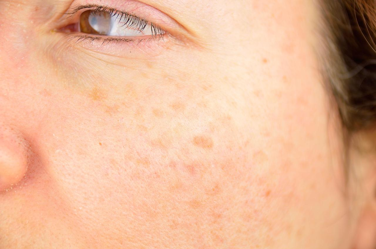 The 7 Best Products to Fade Dark Spots and Even Out Your ...