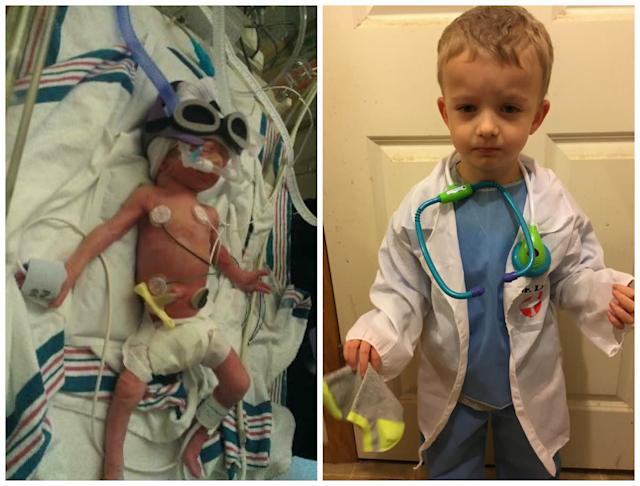 This is my son, Jace. He was born at 31 weeks, weighing 2 pounds, 15 ounces. I was diagnosed with severe preeclampsia at 30 weeks.The doctors were able to get it under control with medication and hospital-supervised strict bed rest. At 31 weeks, an ultrasound showed absent systolic blood flow to him, and he was quickly going downhill. I was taken in for an emergency C-section and suffered from placental abruption during surgery. We are both lucky to be alive. <br><br>He stayed in the NICU for 42 days. He is a healthy 4-year-old now, full of life. He has autism, along with a lot of developmental delays (he's just now starting to talk), and has a VSD, a hole in the wall of the heart that separates the ventricle from the atrium. He has definitely taught me to never give up!<br><br><i>--Kim Blasengame</i>