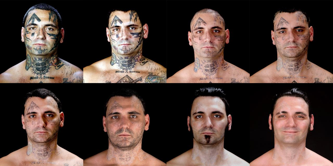 "This combination of eight photos provided by Bill Brummel Productions shows the progress of tattoo removal treatments for former skinhead Bryon Widner. For 16 years, Widner was a glowering, swaggering, menacing vessel of savagery - an ""enforcer"" for some of America's most notorious and violent racist skinhead groups. Though his beliefs had changed, leaving the old life would not be easy when it was all he had known - and when his face remained a billboard of hate. (AP Photo/Duke Tribble, Courtesy of MSNBC and Bill Brummel Productions)"