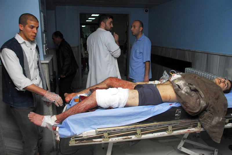 In this photo released by the Syrian official news agency SANA, a man who was wounded when a bomb blast attacked the entrance of the main train station, lies on a hospital bed, in Damascus, Syria, Wednesday, Nov. 6, 2013. Bombs targeting the entrance of a landmark Ottoman railway building in Damascus and a feared security agency in Syria's southeast killed more than a dozen people on Wednesday, activists reported. (AP Photo/SANA)