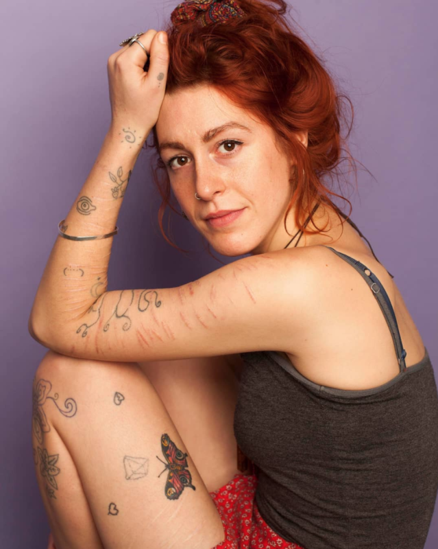 "Lizzie showed off her scars and shared her inspiring story of self-injury for photographer Sophie Mayanne's Behind the Scars campaign. (Photo: <a href=""https://www.instagram.com/sophiemayanne/"" rel=""nofollow noopener"" target=""_blank"" data-ylk=""slk:Sophie Mayanne"" class=""link rapid-noclick-resp"">Sophie Mayanne</a>)"