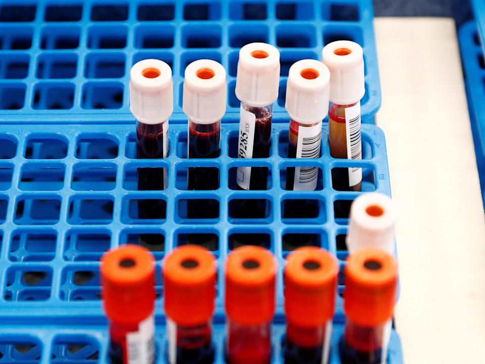 Tubes with blood samples are seen at the Belgian Red Cross blood collection centre during the coronavirus pandemic (REUTERS/Francois Lenoir)