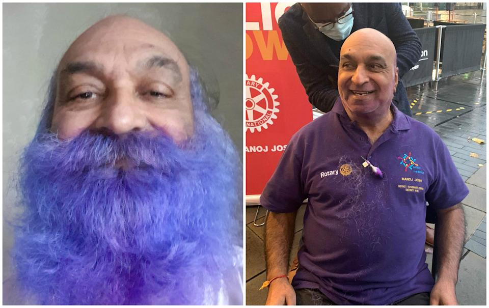 Dr Manoj Joshi, before and after. (SWNS)