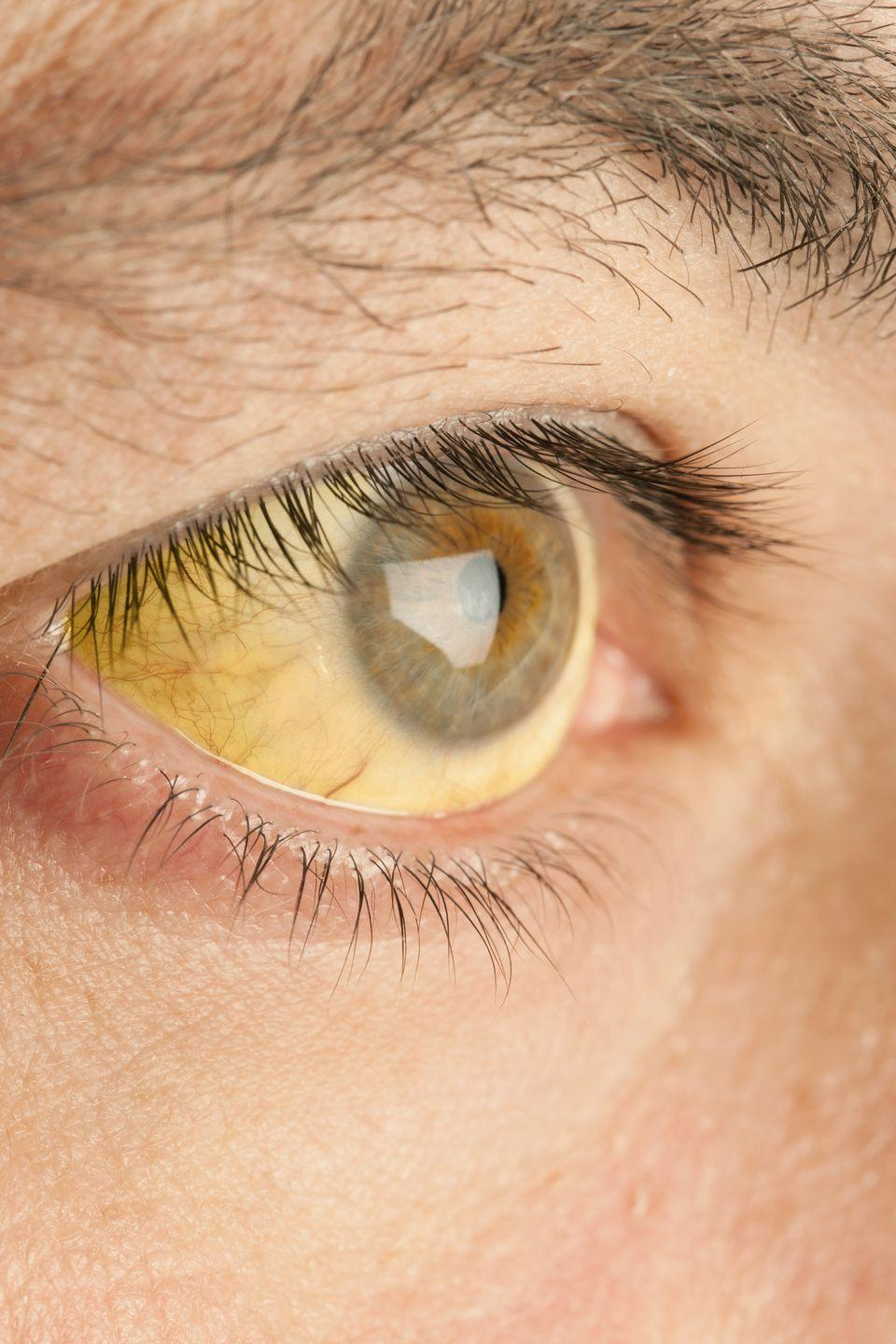 """<p>If the whites of your eyes are yellowing like old paper, it should come as no surprise that this is definitely a <a rel=""""nofollow noopener"""" href=""""https://www.womansday.com/health-fitness/womens-health/g2923/heart-attack-warning-signs/"""" target=""""_blank"""" data-ylk=""""slk:warning sign"""" class=""""link rapid-noclick-resp"""">warning sign</a> something is wrong in your body. The biggest contenders for culprit? Jaundice, a condition that occurs when there's too much bilirubin - a yellow compound formed from the breakdown of red blood cells - in your blood. If your liver can't filter the cells, bilirubin builds up and can cause your eyes and skin to turn yellow. It's pretty rare in adults (sometimes babies are born with jaundice), but much of the time it's due to an infection like hepatitis, alcohol-related liver disease, or something blocking your bile ducts like gallstones or cancer.<br></p>"""
