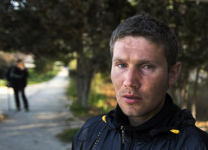 In this photo taken Tuesday, April 1, 2014, Alexander Pevzenko, 30, a patient of treatment for drug addiction, poses in Sevastopol, Crimea. Across the Black Sea peninsula, some 800 heroin addicts and other needle-drug users take part in methadone programs, seen as an important part of efforts to curb HIV infections by taking the patients away from hypodermic needles that can spread the AIDS-causing virus. After Russia's annexation of Crimea methadone was banned. The ban could undermine years of efforts to reduce the spread of AIDS in Crimea. (AP Photo/Pavel Golovkin)