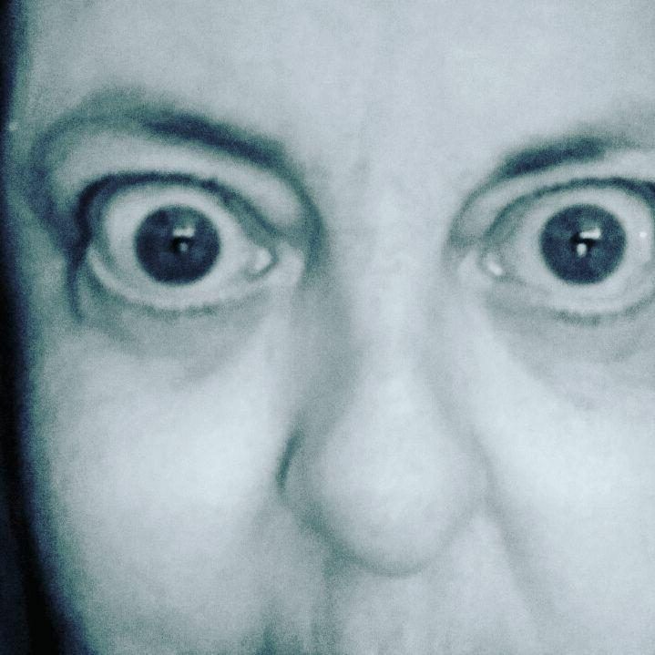 woman's eyes bulging out due to graves' disease