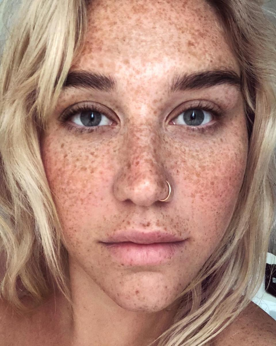"""Kesha is vowing to show her freckles more in 2019. """"This year my resolution is to love myself…just as I am, all fucked up and imperfect and whatever else,"""" she <a href=""""https://www.instagram.com/p/BsqxOCchIv0/"""" rel=""""nofollow noopener"""" target=""""_blank"""" data-ylk=""""slk:wrote"""" class=""""link rapid-noclick-resp"""">wrote</a> on Instagram. """"And to let my freckles liiiiiiiive 🛸🛸💃🏼💃🏼💅🏻💅🏻💅🏻."""""""