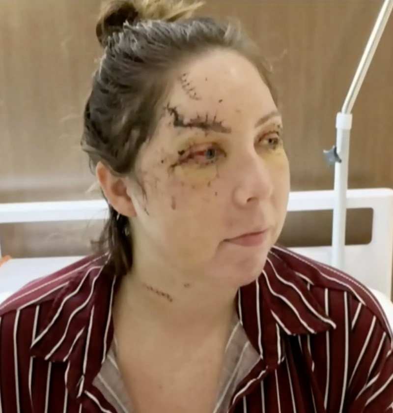 Woman shown after surgery for injuries sustained in brutal hotel bashing in Mexico.