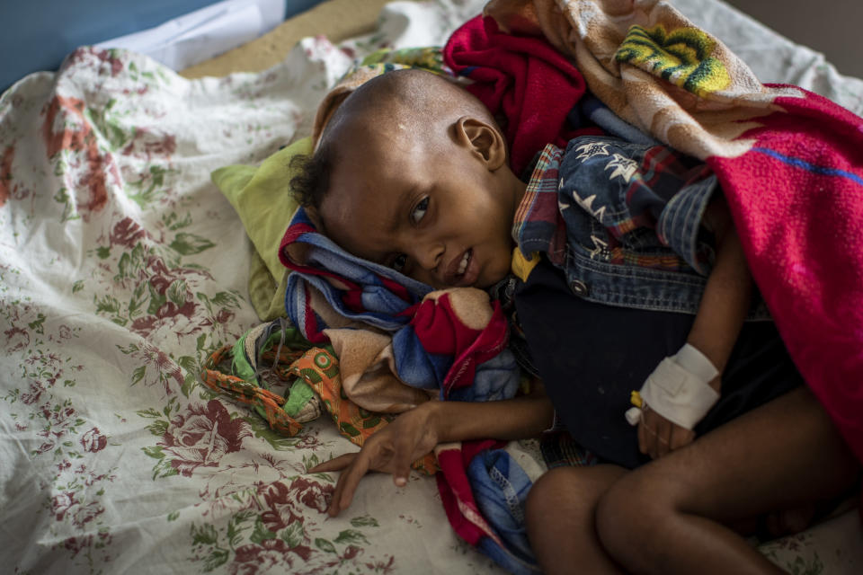 """Gebre Kidan Gebrehiwet, 2, is treated for malnutrition after fleeing from the town of Abi Adi with his mother, Abeba Tesfay, at the Ayder Referral Hospital in Mekele, in the Tigray region of northern Ethiopia, on Thursday, May 6, 2021. Birhanu Gebremedhin, health coordinator for the district of Abi Adi, says, """"This malnutrition is caused by the conflict. … They've stolen their food, their equipment, and some were killed by the troops even. So they are not able to feed their children."""" (AP Photo/Ben Curtis)"""