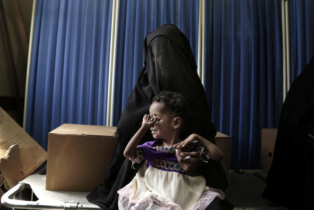 <p>In this Feb. 12, 2018 photo, Sawda Mohammed Khalil holds her malnourished daughter as they wait for treatment at the al-Khoukha Hospital in Yemen. Doctors estimate 40 percent of the children in the town suffer from malnutrition. Barefoot children fill the center's corridors, many visibly emaciated, some with malaria or cholera. Some can barely stand. (Photo: Nariman El-Mofty/AP) </p>