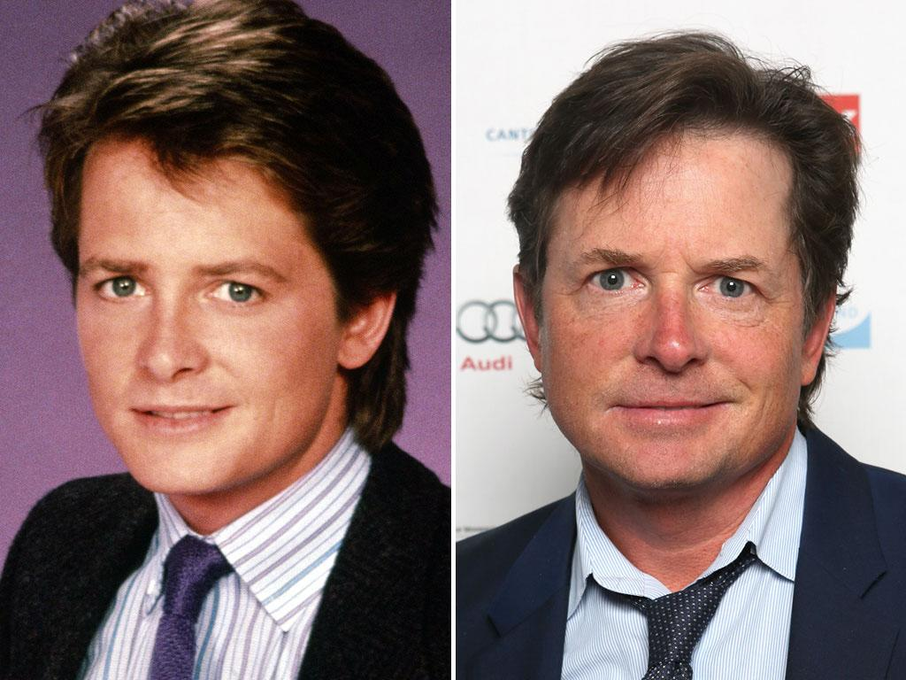 "<b>Michael J. Fox (Alex P. Keaton)</b><br><br>  Michael J. Fox was just 18 years old when he left his native Canada and moved to Hollywood to try to make it big. After an 11-episode run on the short-lived show ""Palmerstown, U.S.A.,"" Fox got his big break. <br><br>  He quickly became the breakout star on ""Family Ties,"" playing the Ronald Reagan-loving young Republican Alex P. Keaton. Not only did the part earn him five Emmy nominations and three back-to-back wins, but it helped him score the lead role of Marty McFly in the ""Back to the Future"" film franchise. <br><br>  Seven years after ""Family Ties"" ended, Fox captured lightning in a bottle a second time with another hit sitcom called ""Spin City."" But during the show's fourth season, Fox announced that he had contracted Parkinson's disease years earlier and would be taking time off to focus on his family. He did, however, go on to have recurring roles on the series ""Boston Legal"" and ""Rescue Me.""<br><br>  Just this year, he garnered two Emmy nods for his guest appearances on the comedy ""Curb Your Enthusiasm"" and the drama ""The Good Wife."" Fox lost in both categories, but odds are there are more statues in his future. He'll be back on NBC with a new sitcom loosely based on his life in the fall of 2013. <br><br>  During the run of ""Family Ties,"" Fox met his future wife, Tracy Pollan. They married in 1988 and have four kids. In 2000, he established the Michael J. Fox Foundation, which is focused on finding a cure for Parkinson's disease."