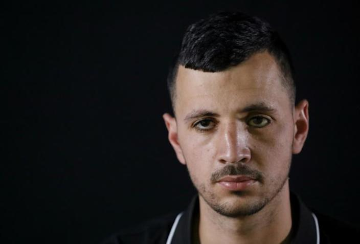 Mohammed Burqan, who lost his left eye, poses for a photo in Jerusalem (AFP Photo/EMMANUEL DUNAND)