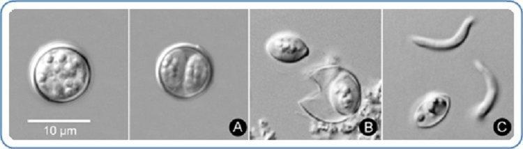 Cyclospora cayetanensis oocysts, which are shed by infected feces, are seen. The parasite becomes infective to others at the last stage (C) pictured. (CDC/DPDx)