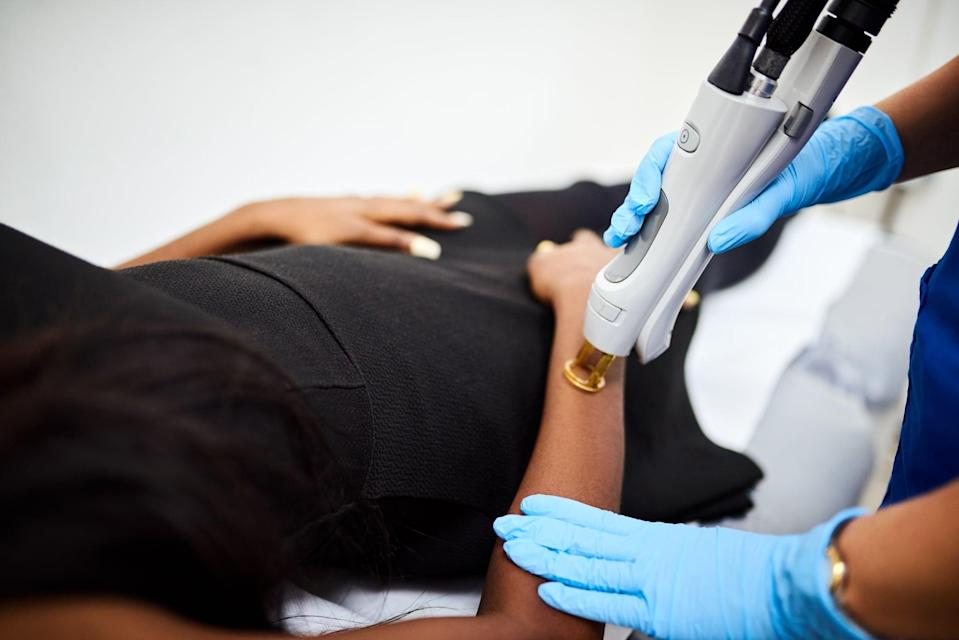"<p>Laser hair removal treatments are usually on the pricier side to begin with and they require multiple treatments spread out over a couple of months. With this in mind, Christian Karavolas, the owner of New York-based <a href=""https://www.romeojuliettelaserhairremoval.com/"" class=""link rapid-noclick-resp"" rel=""nofollow noopener"" target=""_blank"" data-ylk=""slk:Romeo &amp; Juliette Laser Hair Removal"">Romeo &amp; Juliette Laser Hair Removal</a>, said you should tip after each session but not 20 percent. ""If a client is extremely happy, they'll usually they'll leave $10 for small areas and $20 or more for large areas,"" said Karavolas.</p>"