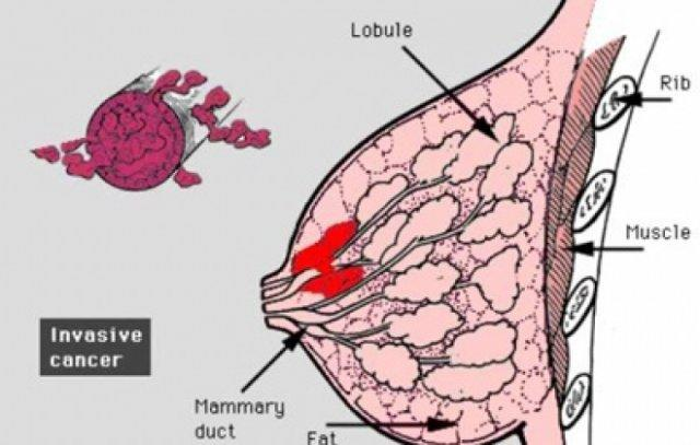Obesity increases breast cancer risk by 30%