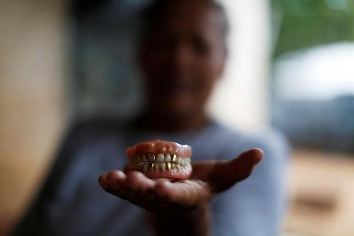 Miriam Marquez shows a dental prosthesis of her mother in law killed by Salvadorean soldiers in the village of El Mozote