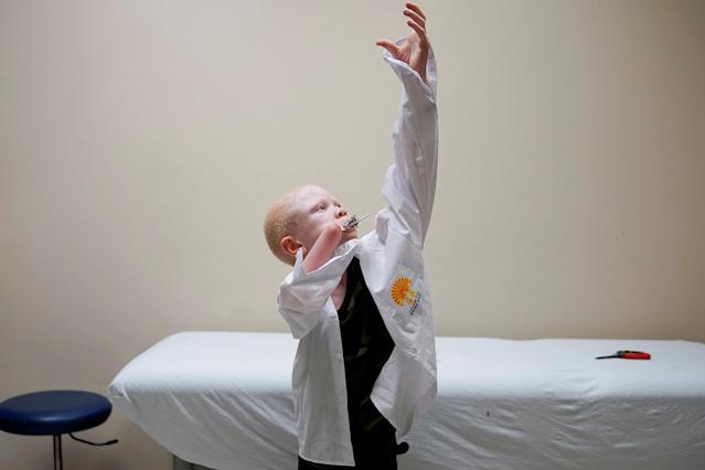 <p>Baraka Lusambo, 7, a Tanzanian with albinism who had an arm chopped off in a witchcraft-driven attack, puts on his shirt during a prosthetic fitting while he sucks on his lollipop, at the Shriners Hospital in Philadelphia, Pa., on May 30, 2017. (Photo: Carlo Allegri/Reuters) </p>